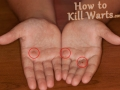 warts-on-hands