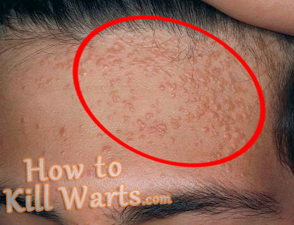 Warts : Types, Treatments, Causes - WebMD