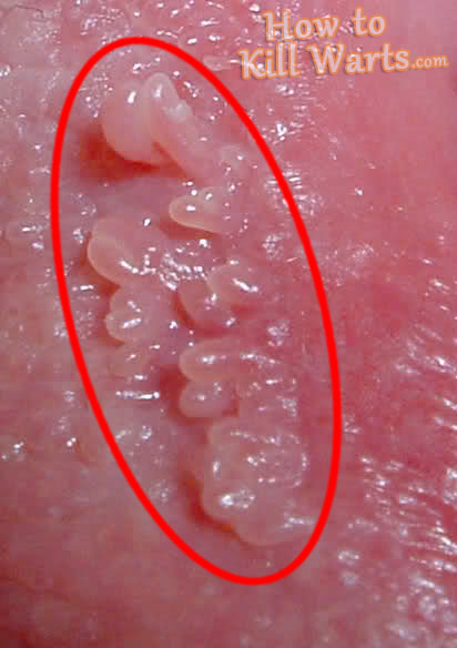 images of vaginal warts