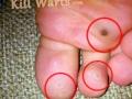 plantar-warts1