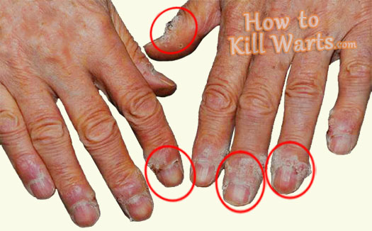 How to kill warts the natural and definitive method to - Are warts contagious in a swimming pool ...